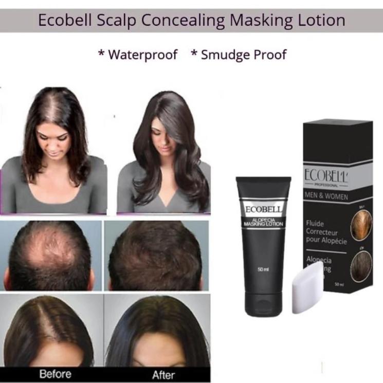 Alopecia Hairloss & Scalp Cream Lotion Concealer
